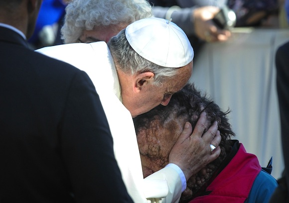 Pope Francis I kisses and blesses the sores of a sick man Papal audience, St. Peter's Square, Vatican City, Rome, Italy - 06 Nov 2013   (Rex Features via AP Images)